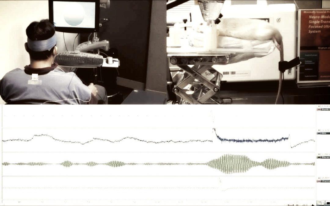 Wissenschaftler verbinden Rattengehirn mit einem Menschen